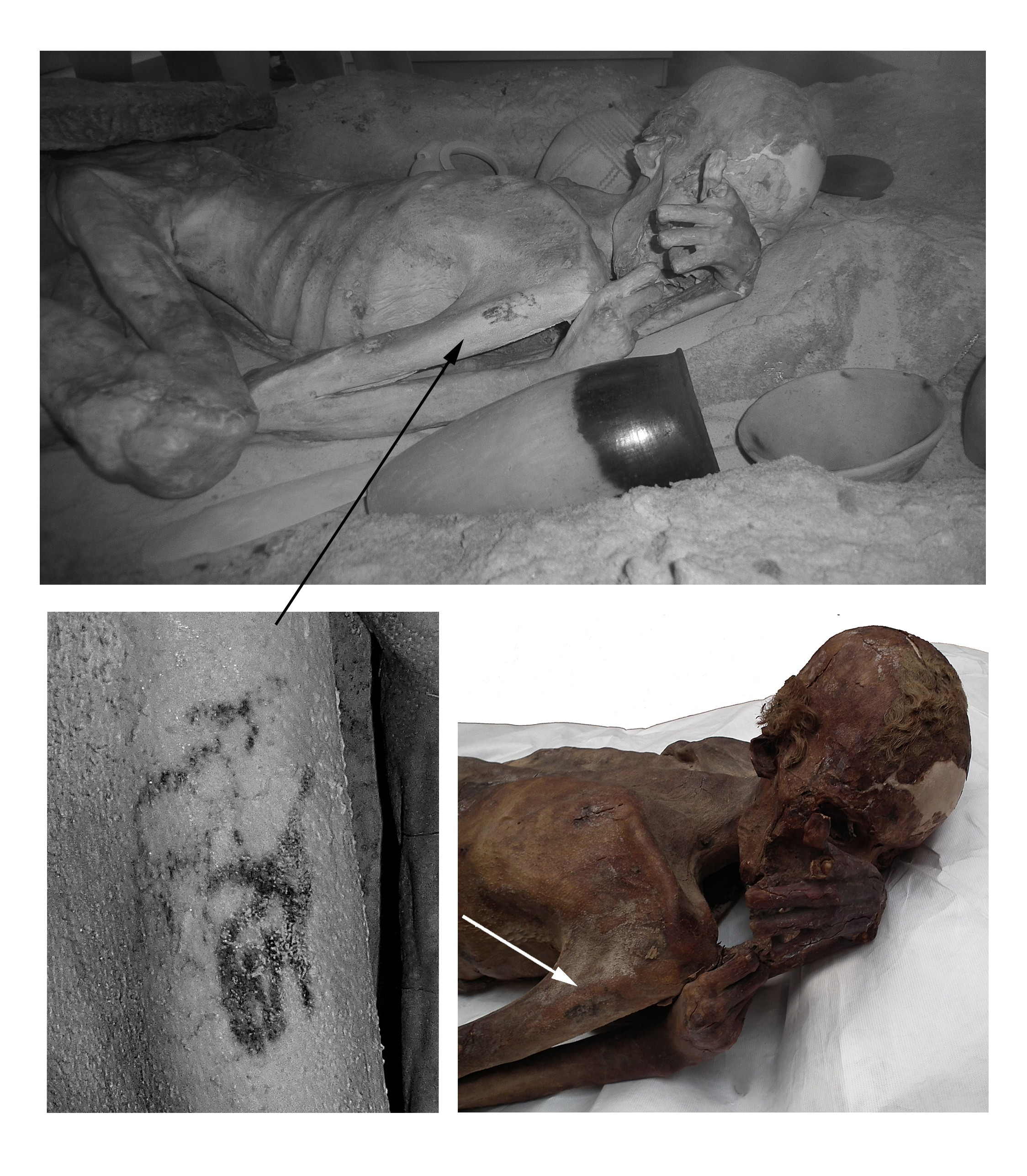 <em>Infrared images of the mummy with details of the tattoos observed on her upper right arm (upper left)and shoulder (upper right)</em>