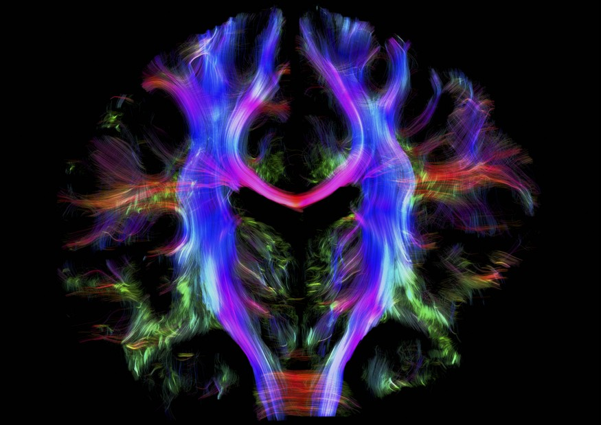 B0010280 Healthy human brain from a young adult, t